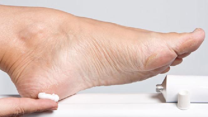 Treating cracked heels