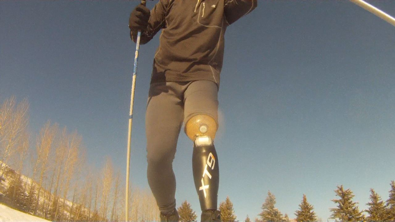 Amputee Creates Sells Prosthetic Knee For Outdoor Sports KSLcom