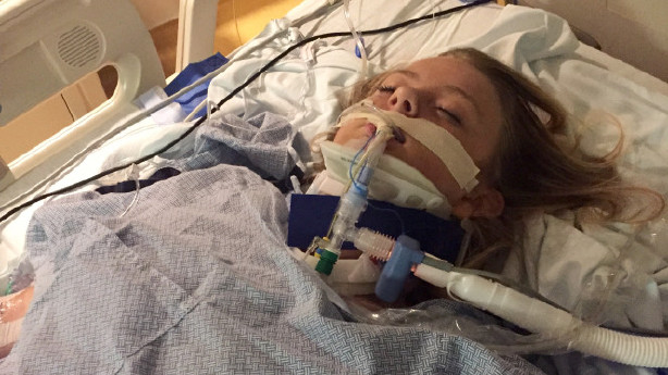 Teen in critical condition after 'car surfing' accident ...