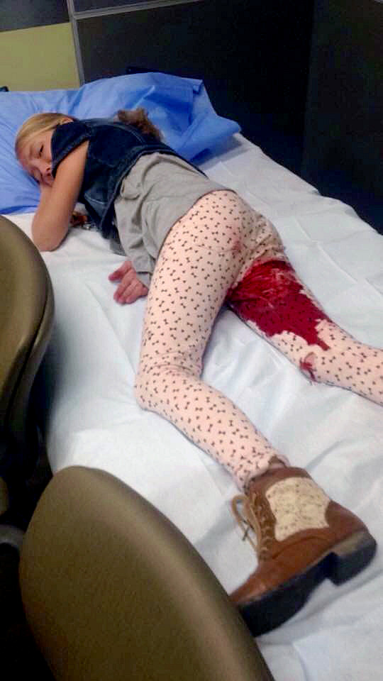 year-old Roosevelt girl has surgery after pit bull attack | KSL.com