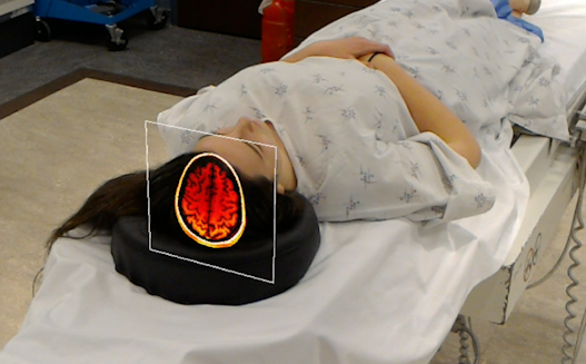 Provo doctors use hologram imaging to change the way surgeons operate