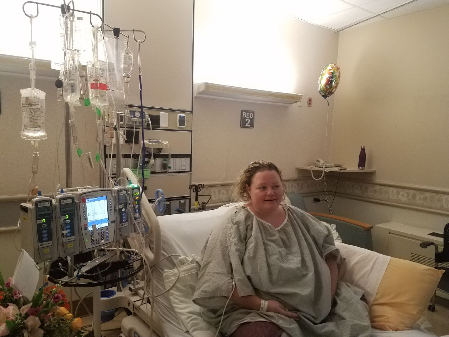 Utah Woman Battles Superbug After Weight Loss Surgery In Mexico