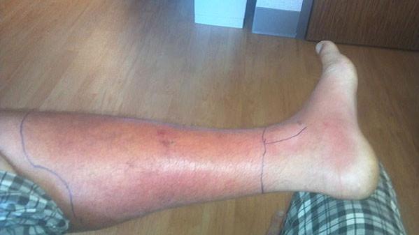 Blood Clot Symptoms amp Massage Therapy  Ben Benjamin