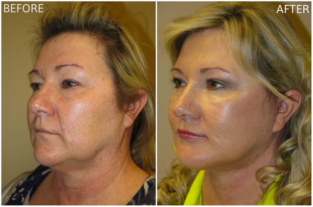 Facial plastic surgery procedures