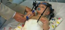 Médico une la cabeza a la columna de un niño de 11 meses en cirugía milagrosa tras accidente