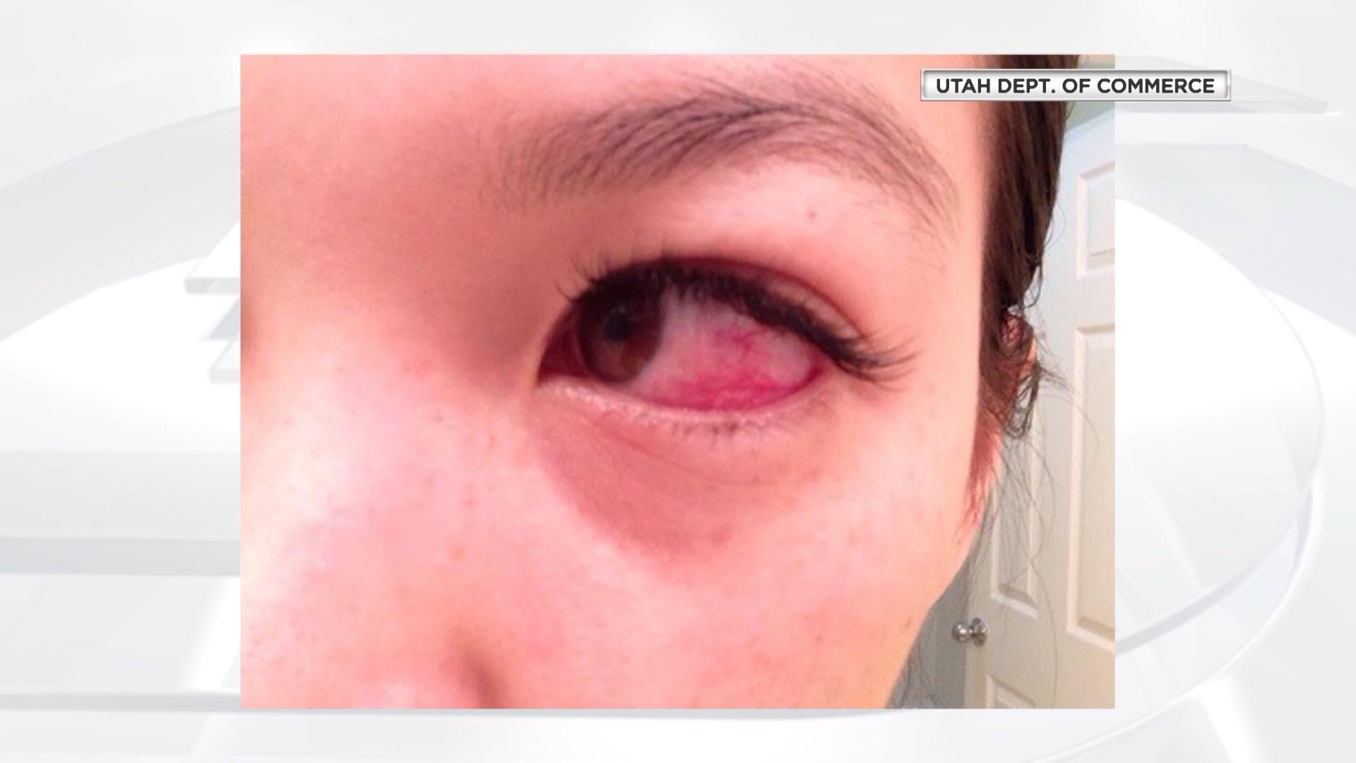State Cites 67 Unlicensed Eyelash Aestheticians Ksl
