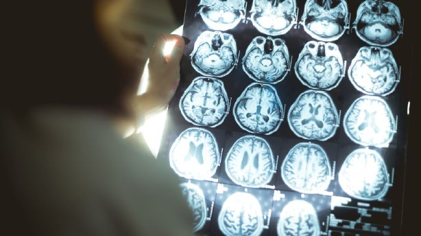A cancer drug might be useful in treating traumatic brain injuries, U. researchers say