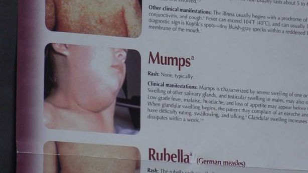 Officials confirm 1 adult mumps case in Utah County