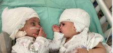 Born conjoined back-to-back, Israeli twins finally see each other after surgery
